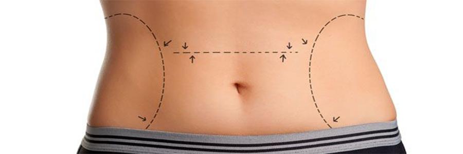 karın-germe-liposuction